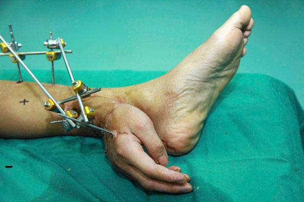 Cirujanos injertan la mano de un hombre en su pierna